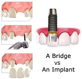 Dental implant or dental bridge?