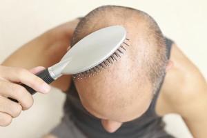 Hair regrowth options
