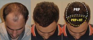 Is platelet rich plasma (PRP) treatment for hair regrowth effective?