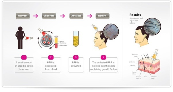 PRP Therapy for Hair Loss Treatment with Hair transplants